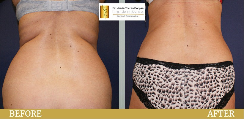Before/After - Liposuction