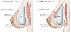protesis mamarias y embarazo